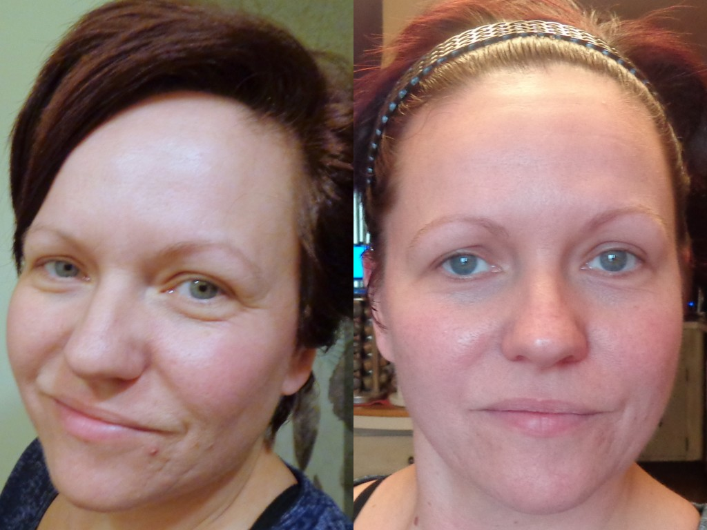 Proactiv Plus Before and After