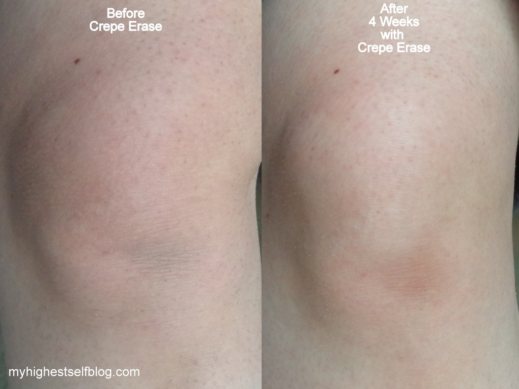 Crepe Erase Before and After